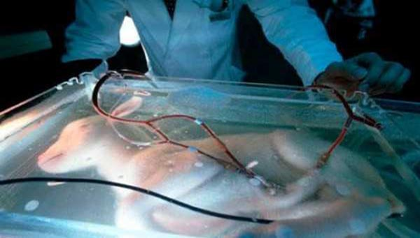 Artificial-Womb-3