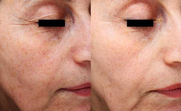 Visible reduction in wrinkles