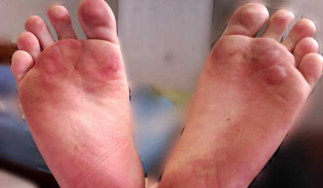 Intense Foot Pain and Blisters