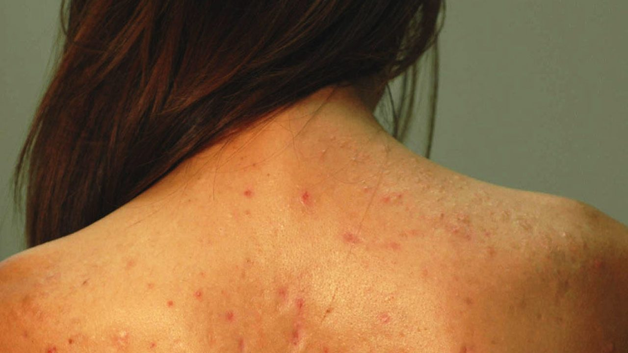 5 Natural Home Remedies To Prevent Back Acne