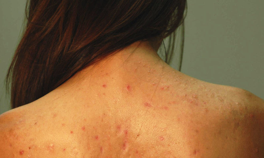 Remedies To Prevent Back Acne