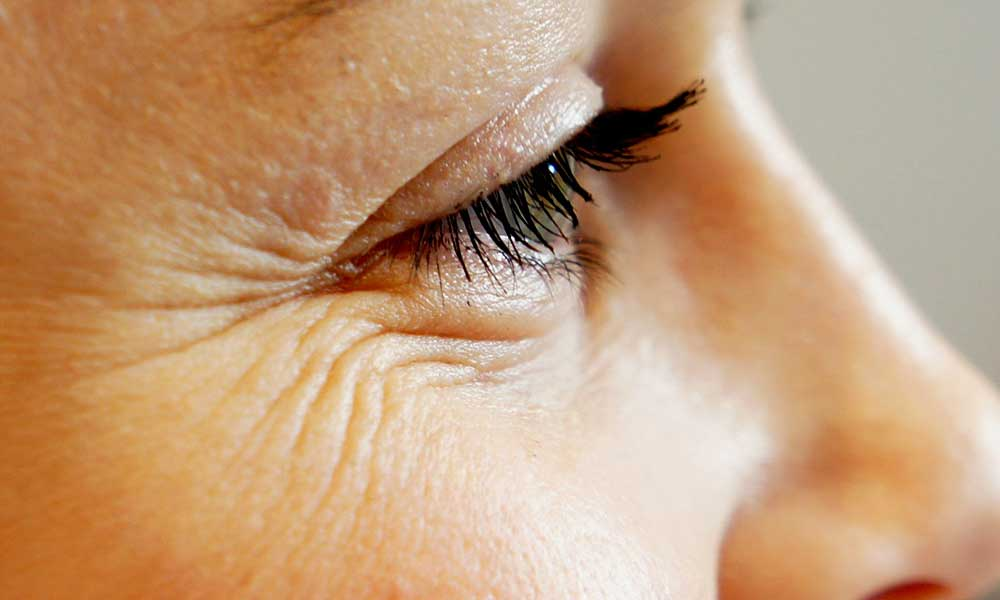 Natural Remedies For Crows Feet
