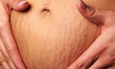 Ways To Prevent Stretch Marks
