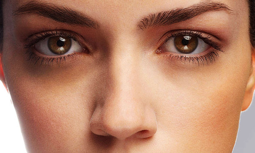 5 Causes Of Dark Circles Under Your Eyes That You Should Know About!