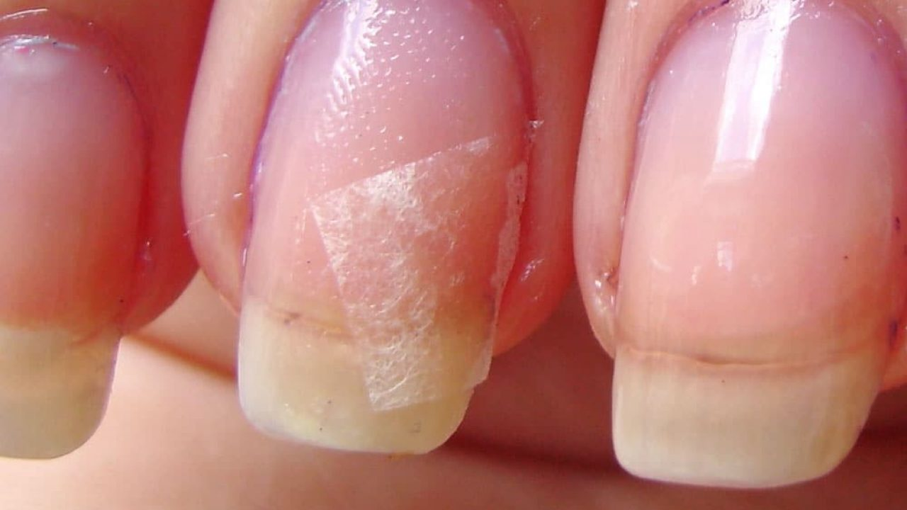 Broken Nail Best Ways To Fix A Broken Nail If You Don T Want To Cut It
