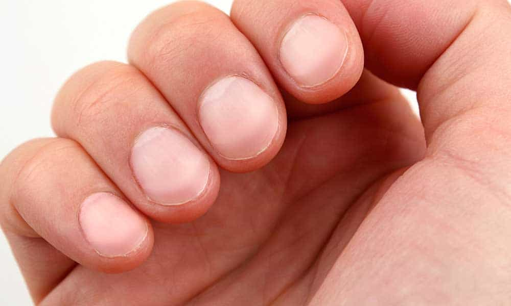 Nails that tell health condition