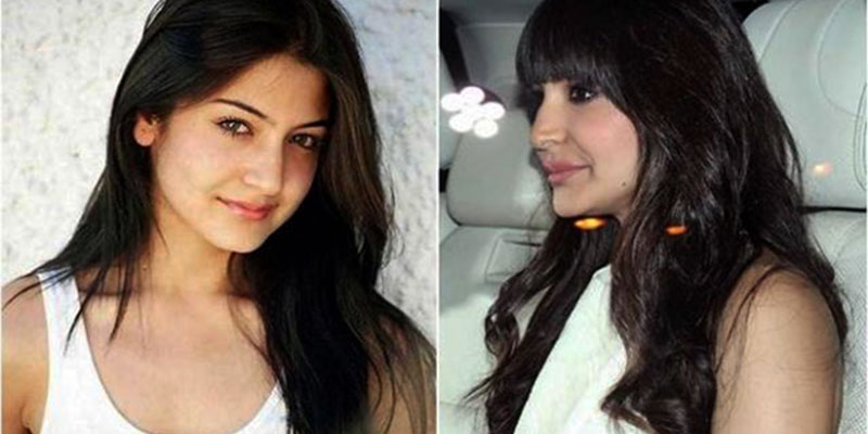 Cosmetic Surgery Messed Up Bollywood Faces